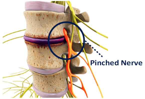 Pinched Nerves Explained