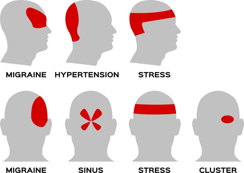 The Difference Between Headaches and Migraines